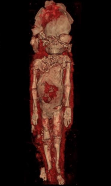 胎児のミイラ CT