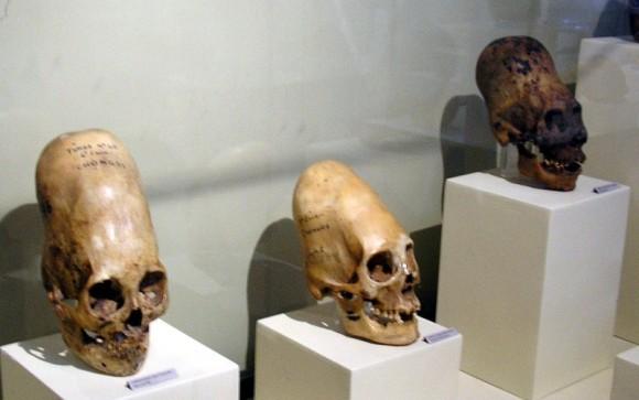 ペルー 変形頭蓋骨